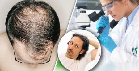 hair loss treatment, hair loss products, finasteride, hair care products, hair loss, laser treatment, minoxidil