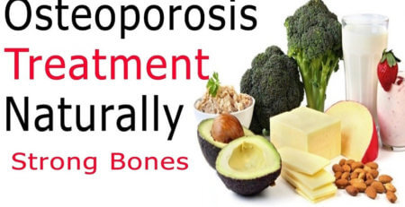 healthy bones, osteoporosis treatment, treatment of osteoporosis