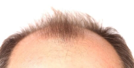 hair care products online, best hair care products online, Hair Loss, Treatments for hair loss